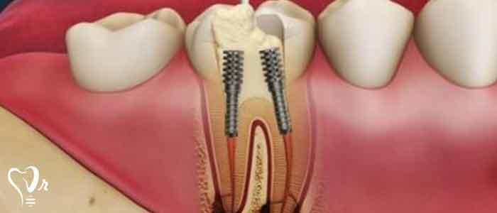 بیلداپ و شکستگی دندان