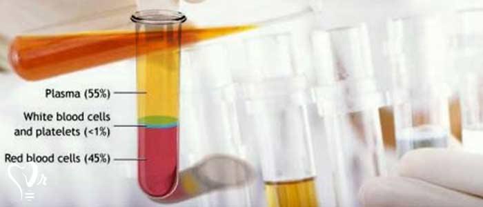 درمان با پی  آر پی  و آماده سازی پلاسمای غنی از پلاکت - فیبرولاس ها