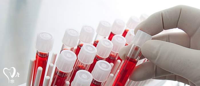 درمان با پی  آر پی  و آماده سازی پلاسمای غنی از پلاکت - استئوبلاست ها