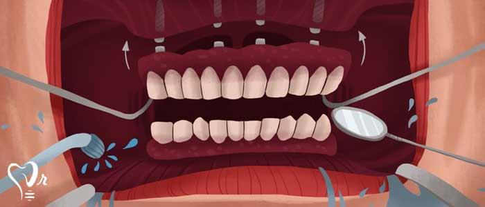 باورهای نادرست درباره مینی ایمپلنت دندان را کنار بگذارید - ایمپلنت معمولی