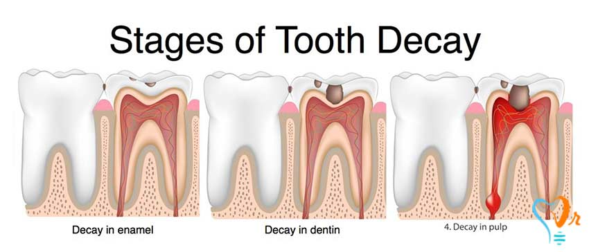 آیا پوسیدگی دندان قابل پیش بینی و پیشگیری است؟ - پوسیدگی دندان چطور به وجود می آید؟