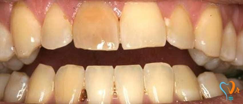 آیا پوسیدگی دندان قابل پیش بینی و پیشگیری است؟ - علائم پوسیدگی دندان چیست؟