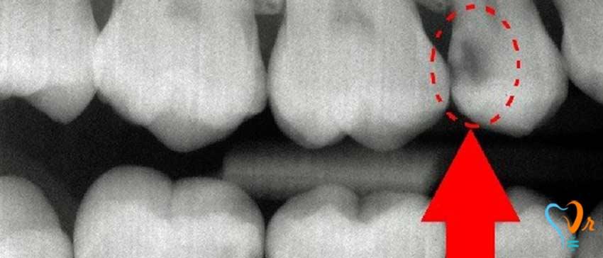 آیا پوسیدگی دندان قابل پیش بینی و پیشگیری است؟ - تشخیص خرابی دندان