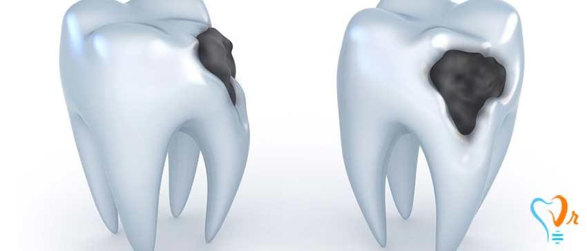 آیا پوسیدگی دندان قابل پیش بینی و پیشگیری است؟ - روش های برطرف کردن پوسیدگی دندان
