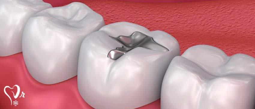 پرکردن دندان با مواد سفید خوبه یا سیاه - پر کردن دندان با جیوه
