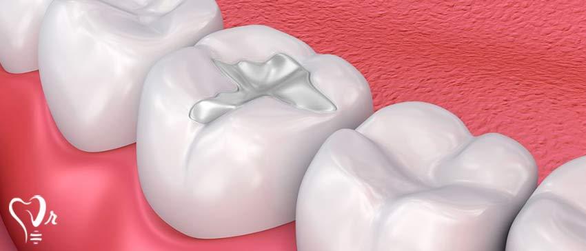 پرکردن دندان با مواد سفید خوبه یا سیاه - پر کردن دندان با ماده سفید یا کامپوزیت