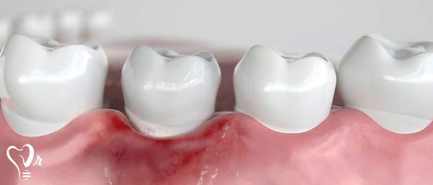 از کجا بفهمیم ایمپلنت دندان با مشکل مواجه شده است؟  -