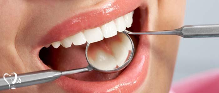 بهداشت دهان و دندان - نقطه آغازین ورود غذا
