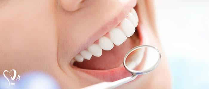 دندان های شیری و دائمی
