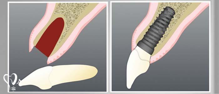 آیا می توان ایمپلنت دندان را بلافاصله پس از کشیدن دندان به کار برد؟1
