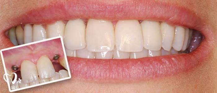آیا می توان ایمپلنت دندان را بلافاصله پس از کشیدن دندان به کار برد؟4