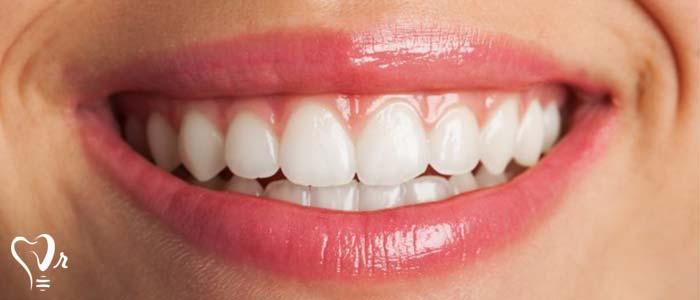 آیا می توان ایمپلنت دندان را بلافاصله پس از کشیدن دندان به کار برد؟6