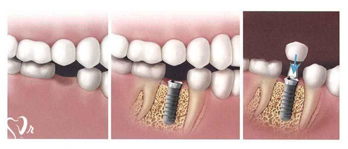 آیا می توان ایمپلنت دندان را بلافاصله پس از کشیدن دندان به کار برد؟7