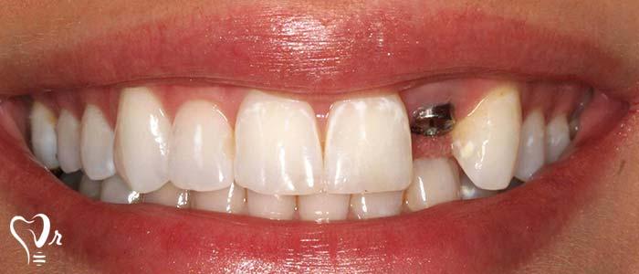 آیا می توان ایمپلنت دندان را بلافاصله پس از کشیدن دندان به کار برد؟8