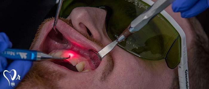 درمان جراحی لثه با لیزر-نشانه های بهره گیری از لیزر برای درمان بیماری لثه کدامند؟