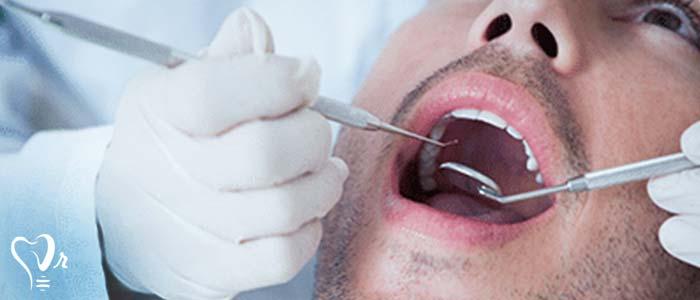 جراحی لثه - علائم ژنژیویت