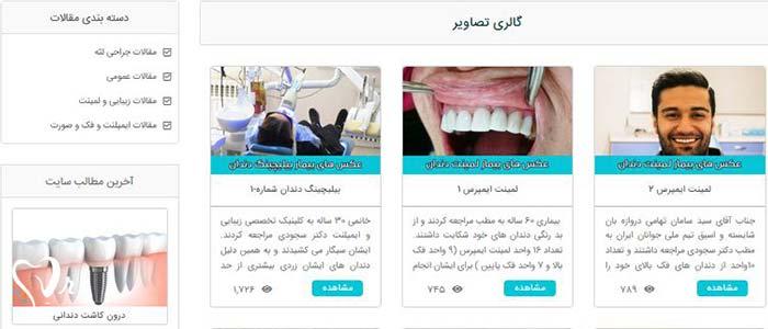 بهترین دندانپزشک در غرب تهران  - مشاهده گالری تصاویر