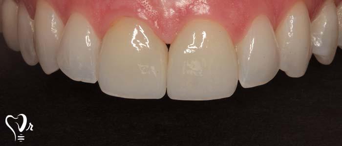 دندانپزشکی زیبایی  و مطالب مفید درباره آن11