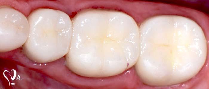 دندانپزشکی زیبایی  و مطالب مفید درباره آن6