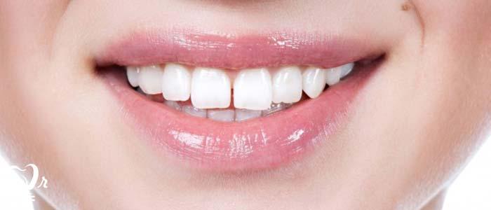 دندانپزشکی زیبایی  و مطالب مفید درباره آن12