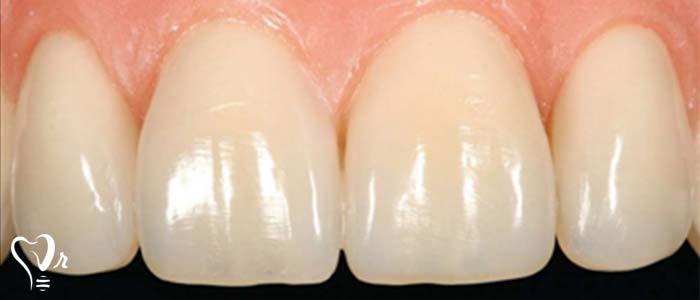 دندانپزشکی زیبایی  و مطالب مفید درباره آن14