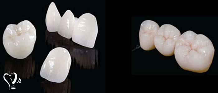 دندانپزشکی زیبایی  و مطالب مفید درباره آن15