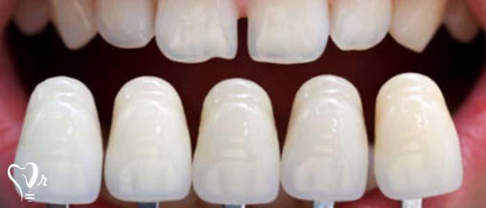 دندانپزشکی زیبایی  و مطالب مفید درباره آن16