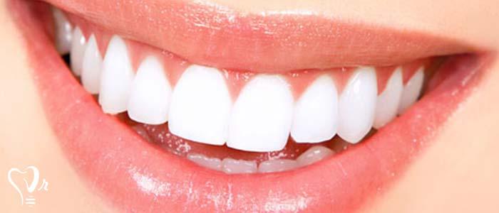 دندانپزشکی زیبایی  و مطالب مفید درباره آن17