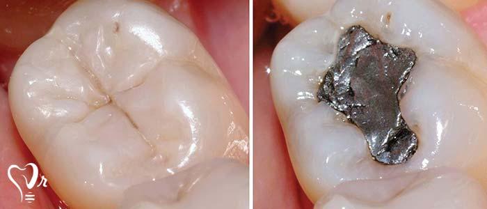 دندانپزشکی زیبایی  و مطالب مفید درباره آن8