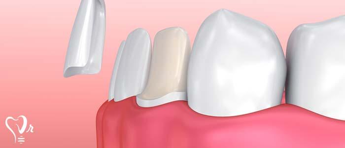 دندانپزشکی زیبایی  و مطالب مفید درباره آن18