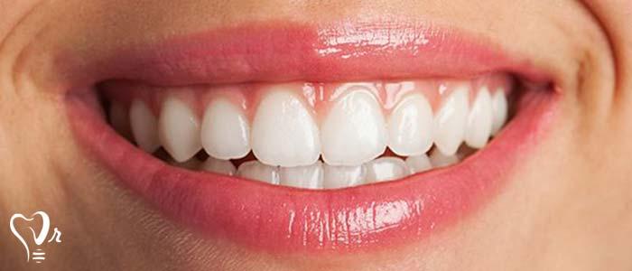 دندانپزشکی زیبایی  و مطالب مفید درباره آن22