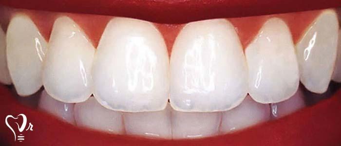 دندانپزشکی زیبایی  و مطالب مفید درباره آن23