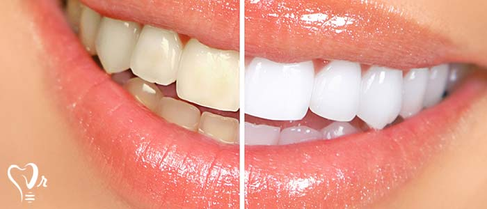 اصلاح طرح لبخند طراحی لبخند با رعایت تمامی نکات22