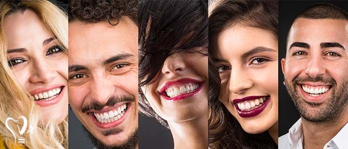 اصلاح طرح لبخند طراحی لبخند با رعایت تمامی نکات3