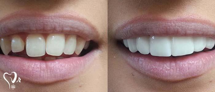 اصلاح طرح لبخند طراحی لبخند با رعایت تمامی نکات23