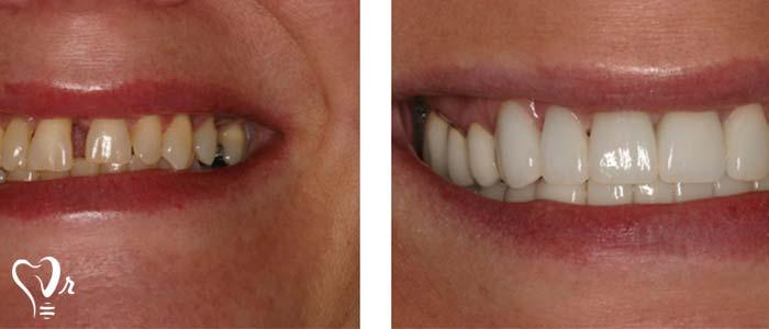 اصلاح طرح لبخند طراحی لبخند با رعایت تمامی نکات17