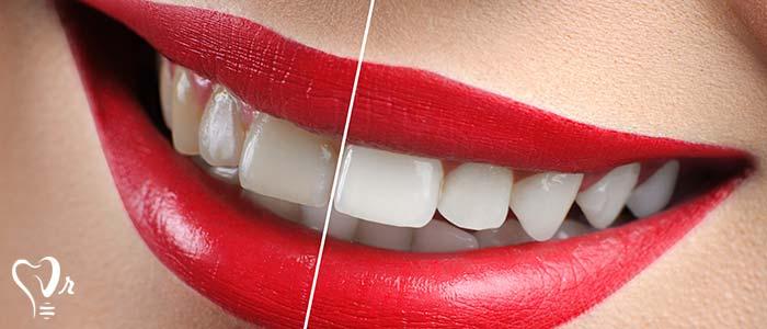 اصلاح طرح لبخند طراحی لبخند با رعایت تمامی نکات32