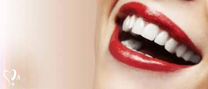 اصلاح طرح لبخند طراحی لبخند با رعایت تمامی نکات33