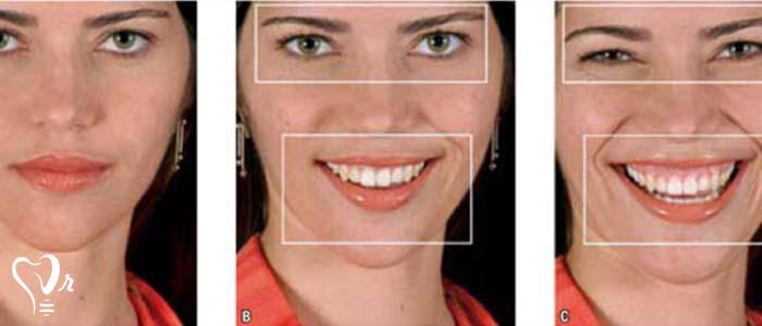 اصلاح طرح لبخند طراحی لبخند با رعایت تمامی نکات4