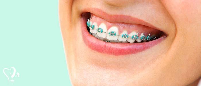 اصلاح طرح لبخند طراحی لبخند با رعایت تمامی نکات9