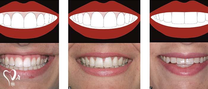 اصلاح طرح لبخند طراحی لبخند با رعایت تمامی نکات5