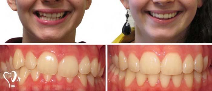 اصلاح طرح لبخند طراحی لبخند با رعایت تمامی نکات12