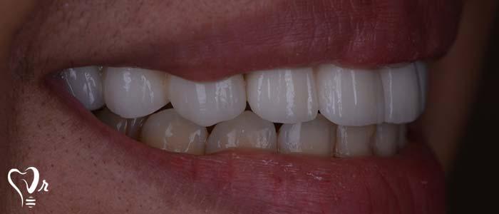 اصلاح طرح لبخند طراحی لبخند با رعایت تمامی نکات13