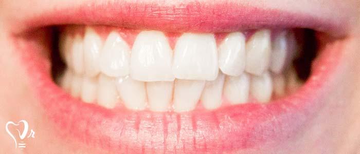 اصلاح طرح لبخند طراحی لبخند با رعایت تمامی نکات14