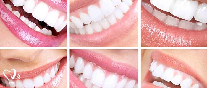 اصلاح طرح لبخند طراحی لبخند با رعایت تمامی نکات34