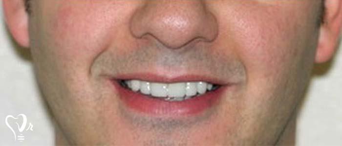 اصلاح طرح لبخند طراحی لبخند با رعایت تمامی نکات35