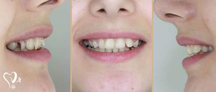 اصلاح طرح لبخند طراحی لبخند با رعایت تمامی نکات36