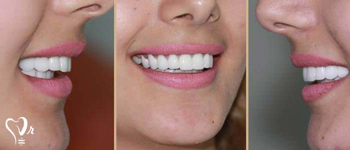 اصلاح طرح لبخند طراحی لبخند با رعایت تمامی نکات37