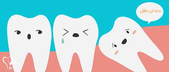 کشیدن دندان عقل و نکات مهم آن1