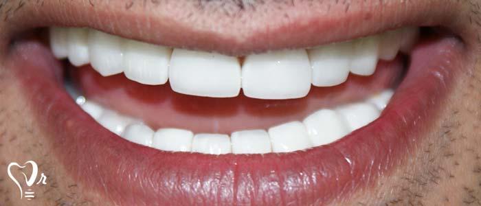 لبخند هالیوودی و همه آنچه که باید بدانید20